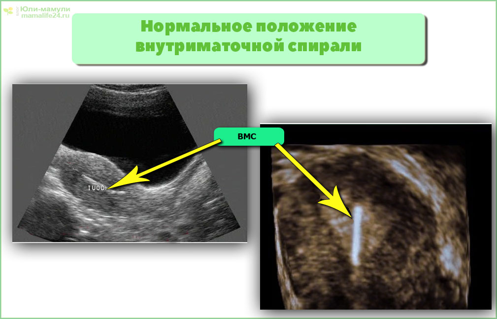 Нормальное положение внутриматочной спирали
