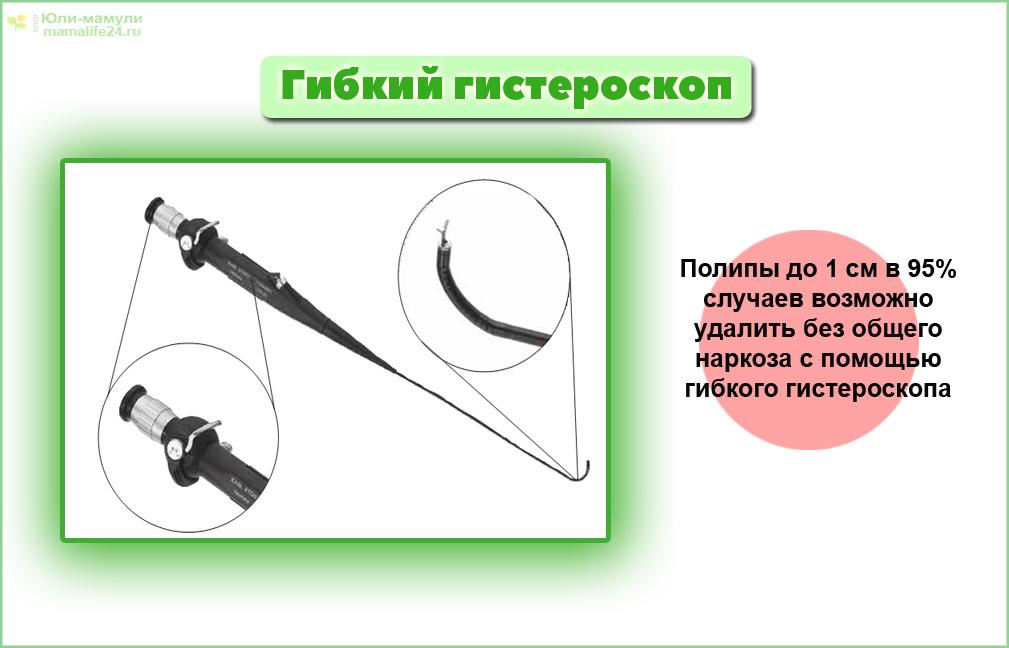Гибкий гистероскоп фото