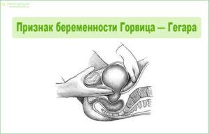 Признак беременности Горвица-Гегара