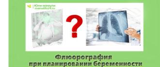 Флюорография при планировании беременности