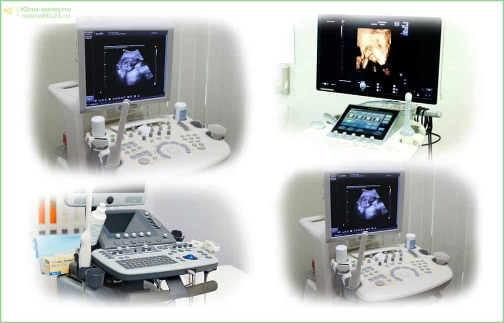 Аппараты для УЗИ органов малого таза