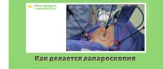 Как делается лапароскопия
