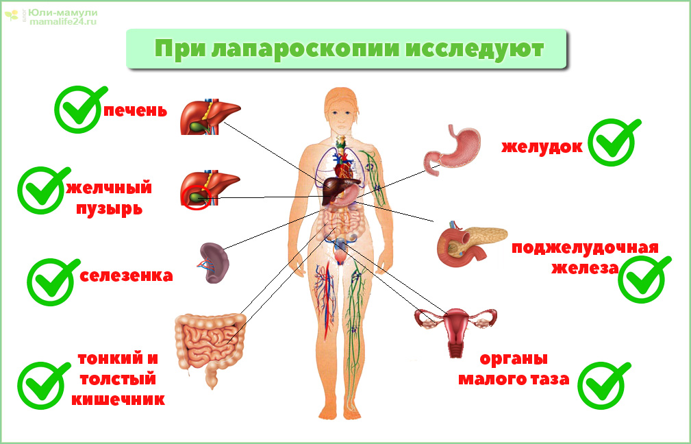 лапароскопия органов