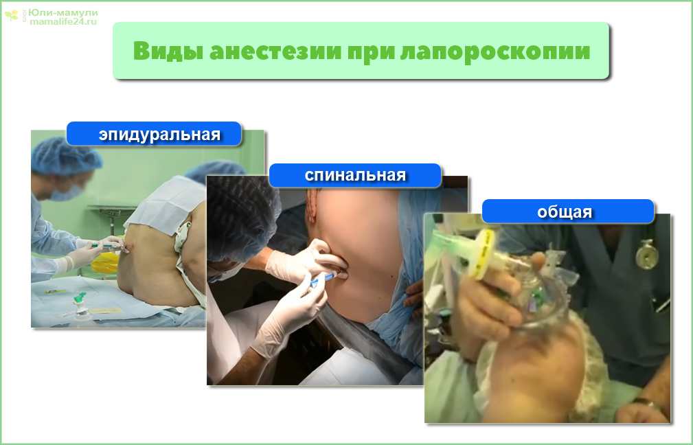 под каким наркозом делают лапароскопию