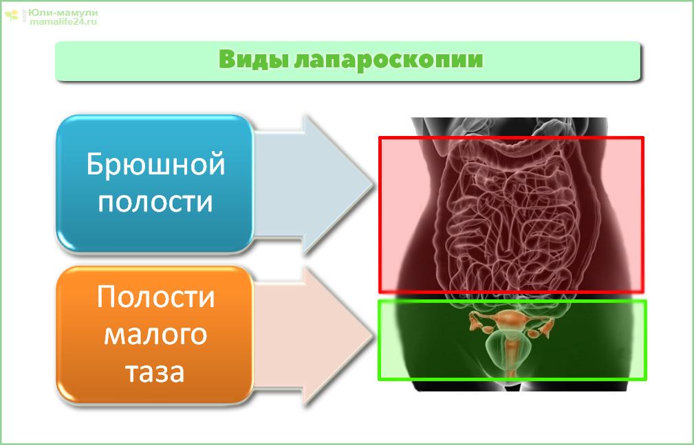 Виды лапароскопии
