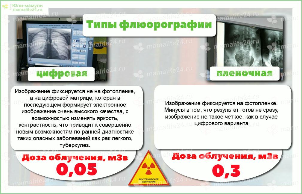 флюорография при беременности дозы облучения при разных видах