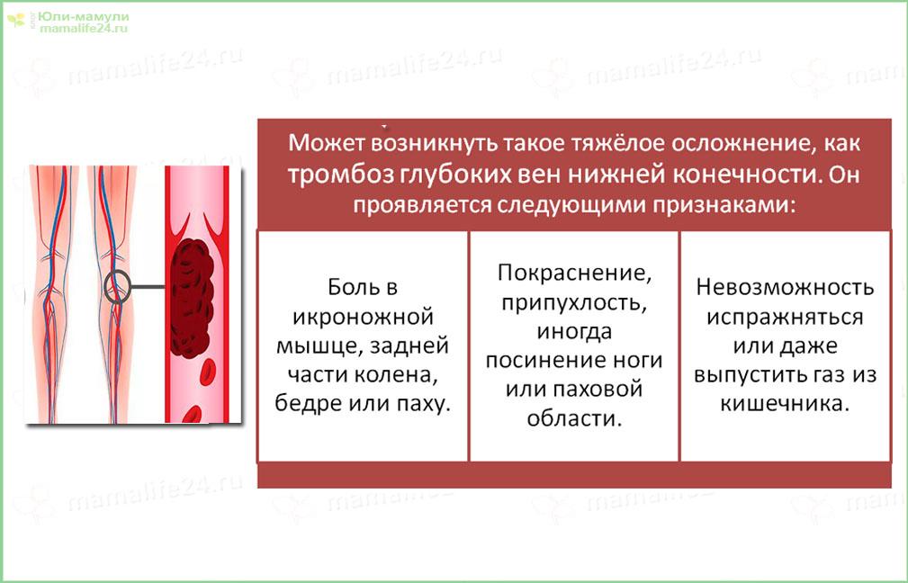 Осложнение после лапароскопии тромбоз глубоких вен