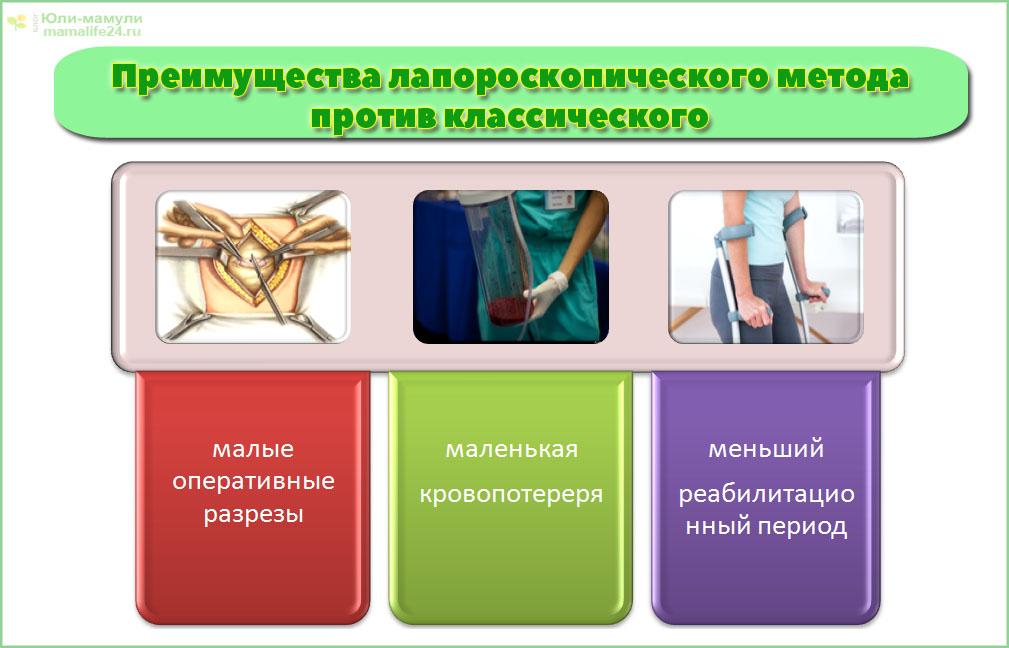 Преимущества лапороскопии против классического метода полостной операции