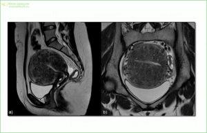 МРТ с использованием контраста