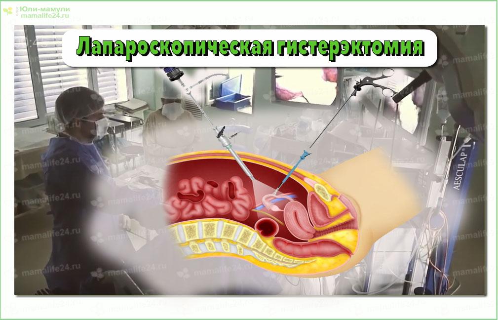 Удаление матки лапароскопия