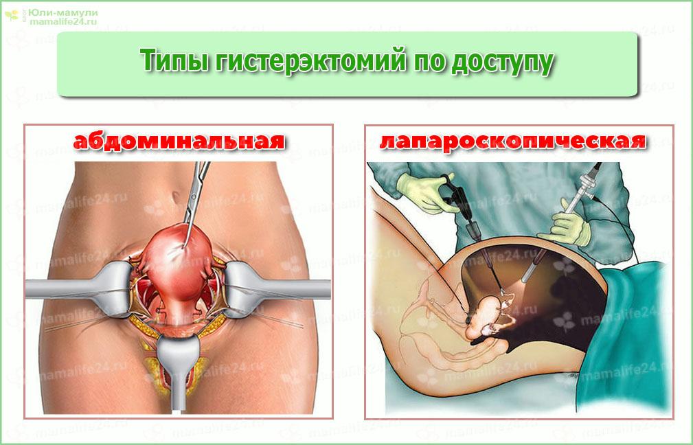 Гистерэктомия лапароскопический метод и полостной (абдоминальный)