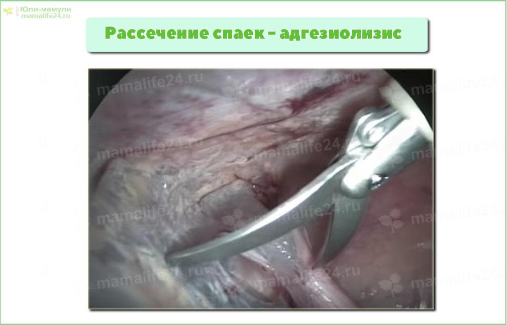 Рассечение спаек - адгезиолизис