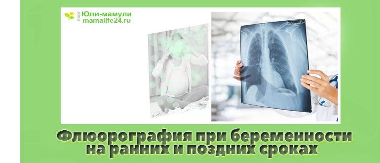 Флюорография при беременности на ранних сроках, на поздних сроках