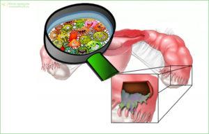 Причина внематочной беременности 5. Инфекция в малом тазу (воспаления тазовых органов)