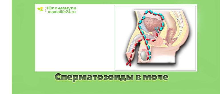 Сперматозоиды в моче ретроградная эякуляция