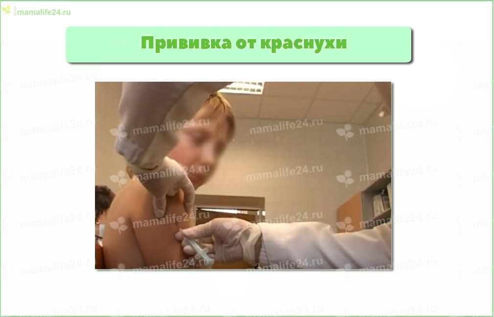 Прививка от краснухи перед беременностью