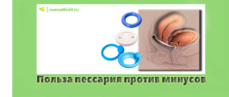 Польза пессария против минусов